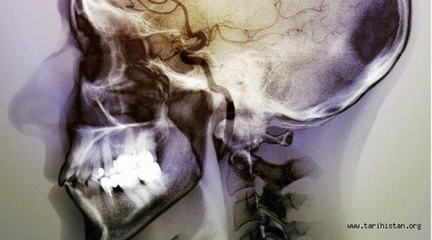 Beynin sigara tiryakiliğiyle bağlantılı kısmı bulundu
