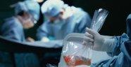 Hayvandan insana organ nakli dönemi geliyor